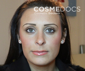 non surgical femal after jaw contoure treatment with botox