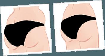 Buttock Sketch