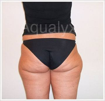 Aqualyx Non-Invasive Treatment Before