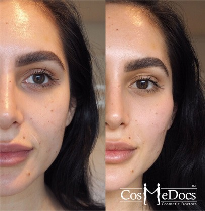 cheek fillers before and after