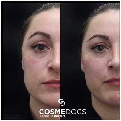 cheekbone treatment with filler before and after