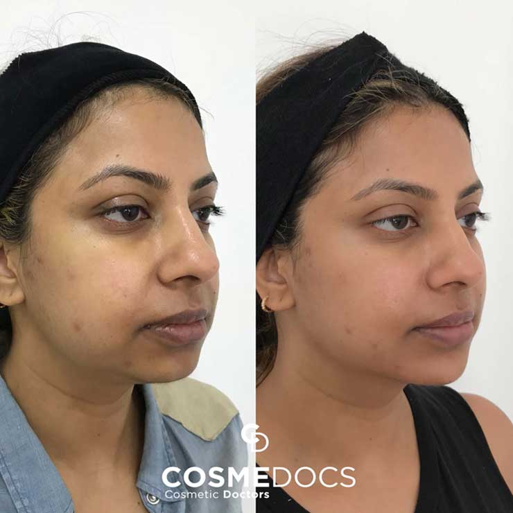 chin jawline treatment with dermal fillers before and after