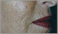 Dermaroller Treatment for philtrum Before