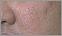 Dermaroller Cheek Treatment Before