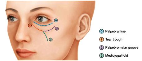 Eye Affected Area