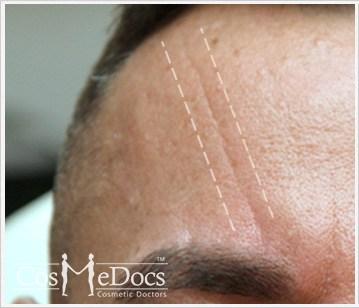 Dermal Filler Treatment forehead Before