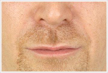Filler Treatment for nasolabial After