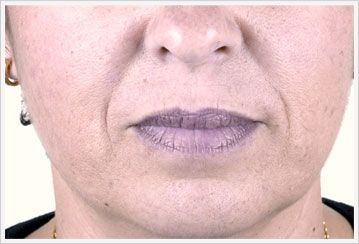 Nosolabial dermal Filler Treatment before