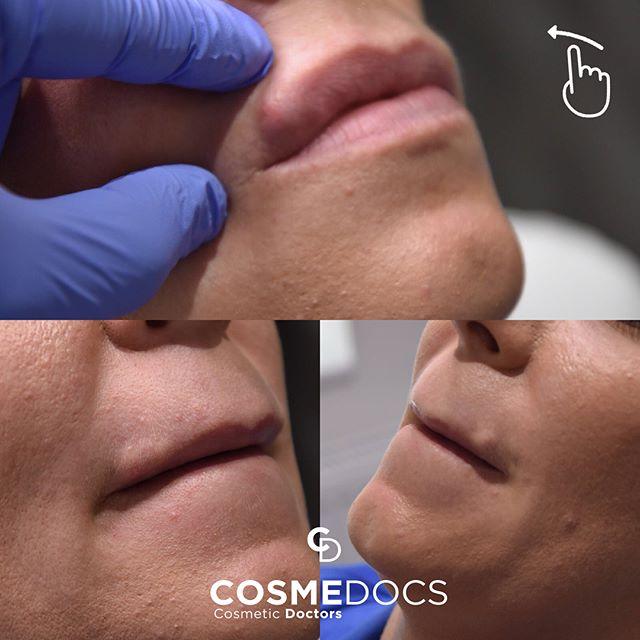 non-surgical lip enhancement treatment