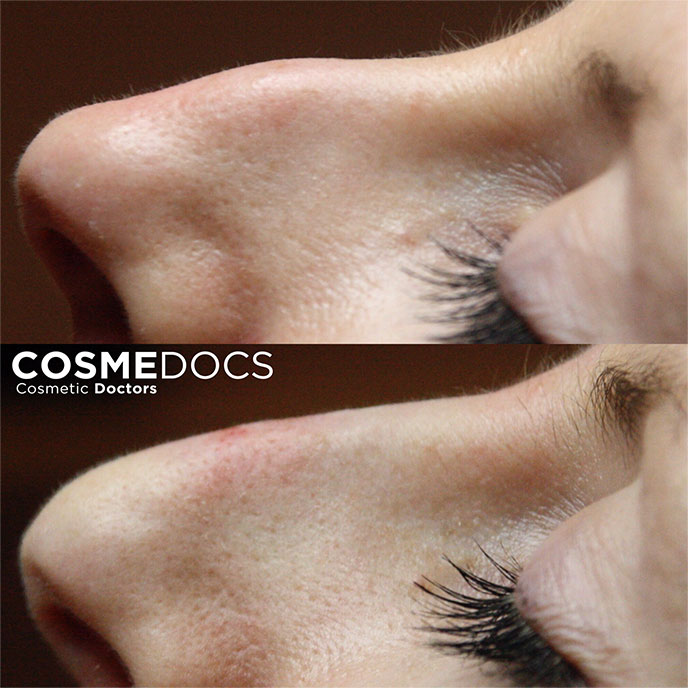 Non surgical rhinoplasty treatment small